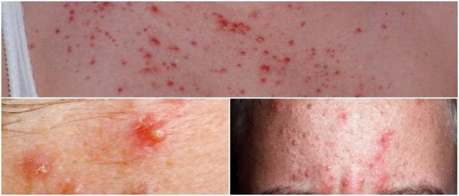 pityrosporum ovale folliculitis treatment