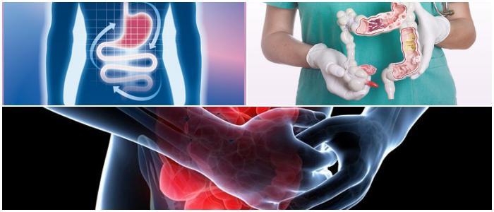 inflammatory bowel disease icd 10