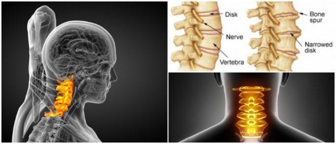 Cervical Spondylosis: Causes, Symptoms and Treatment – Hoool com