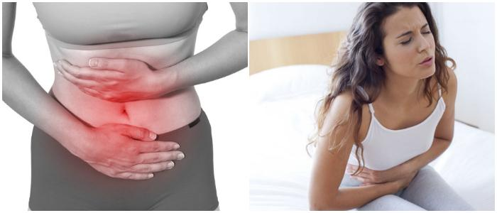 dysmenorrhea and endometriosis