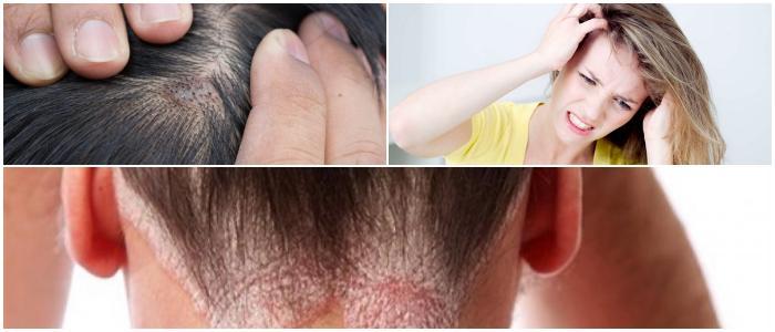 eczema on the scalp causes