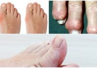 gout symptoms and causes
