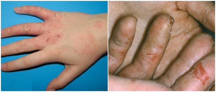 hand eczema fingers
