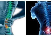 lumbar spondylosis icd 10