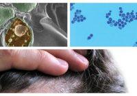 malassezia globosa skin
