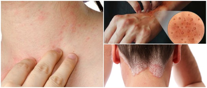 natural remedies for eczema breakouts