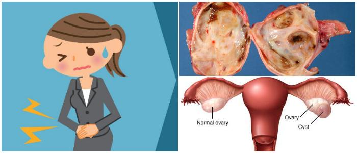 ovarian cysts causes