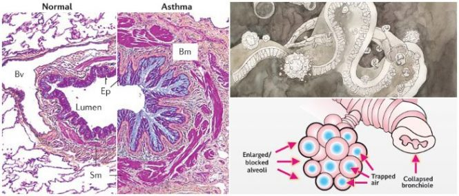 pathophysiology of asthma attack