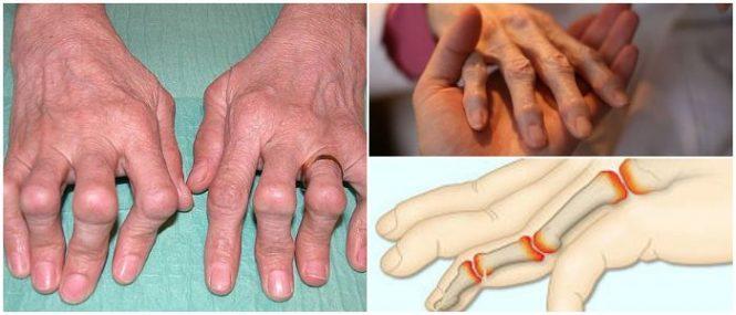 polyarthritis definition