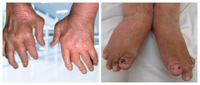 psoriatic arthritis icd 10