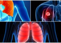 restrictive lung disease icd 10
