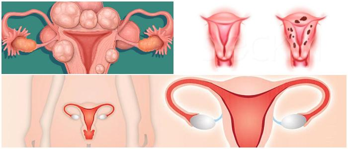 female uterus diseases