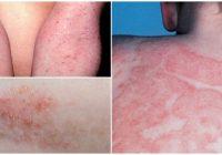 dermatitis cure