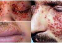 eczema herpeticum blisters