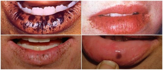 peutz-jeghers syndrome its natural course and management