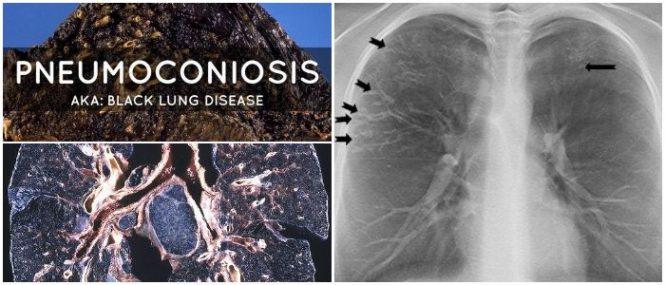 pneumoconiosis symptoms