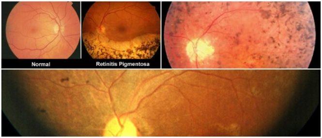 retinitis pigmentosa causes
