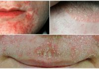 dermatitis blisters