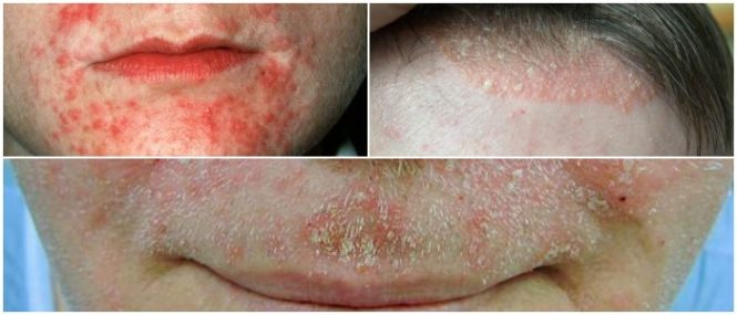Seborrheic Dermatitis: Causes, Risk Factors, Symptoms