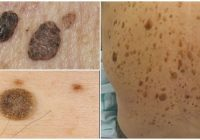 seborrheic keratosis description