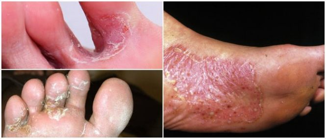 tinea pedis causes