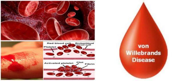 von willebrand disease review