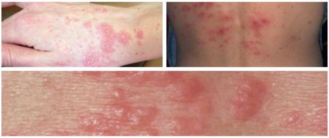 Scabies On The Skin Causes Symptoms And Treatment Hoool