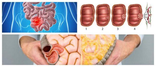 bowel cancer stages