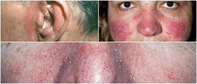 seborrheic dermatitis on face treatment