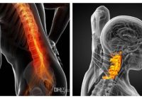 spondylosis definition