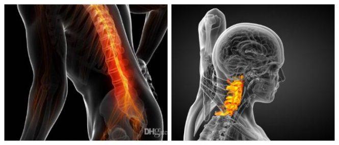 spondylosis definition