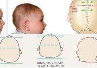 brachycephaly definition