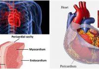 hemopericardium icd 10