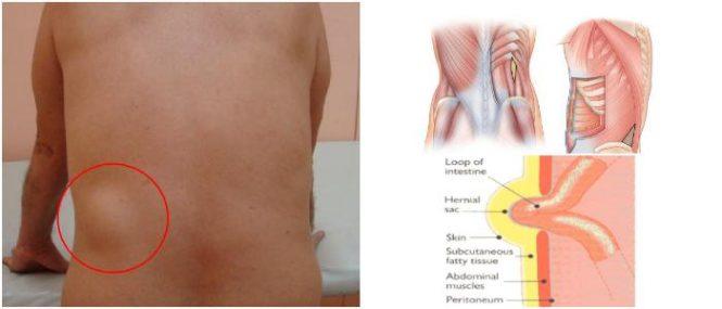lumbar hernia repair
