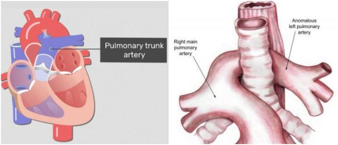 pulmonary artery function and location