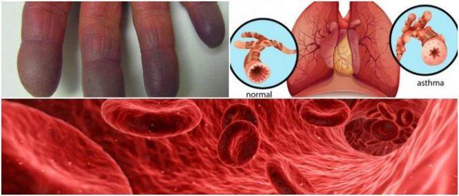 hypoxia vs hypoxemia difference