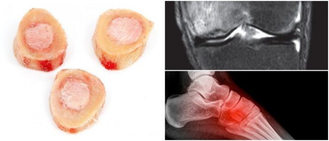 marrow edema causes and meaning