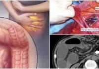 internal hernia icd 10