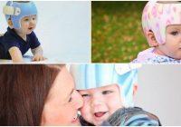 plagiocephaly helmet therapy