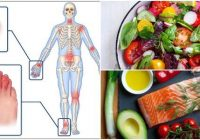 psoriatic arthritis diet plan