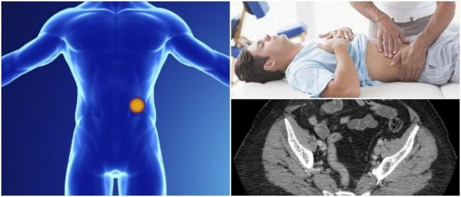 spigelian hernia causes and treatment