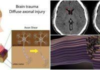 diffuse axonal injury mri