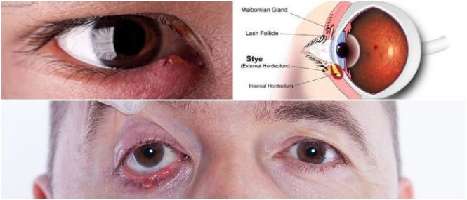 stye on eyelid pictures