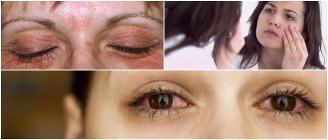treatment for psoriasis on the eyelid