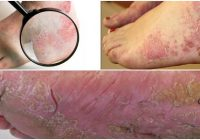 how to treat psoriasis on feet